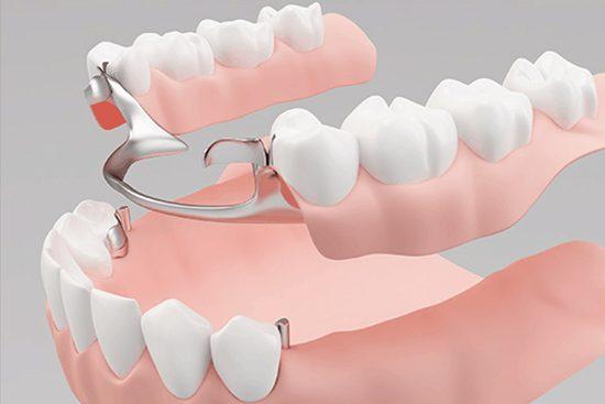 kosbor-fogaszat-szolgaltatas-protezis.jpg